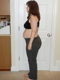 Stomach Exercises - Diastasis Recti (may try after I complete Tupler program)