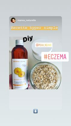 Creme Eczema, The Ordinary Skincare Guide, Organic Skin Care Lines, Top 10 Home Remedies, Asian Skincare, How To Get Rid Of Acne, Skin Problems, Treat Yourself, Skin Care Tips
