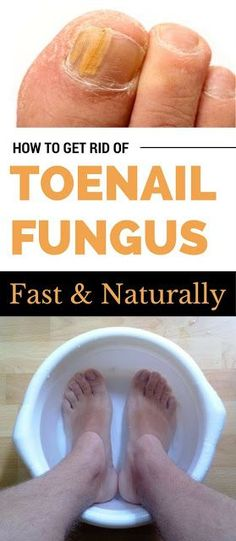 Home Remedies to Cure Toenail Fungus Fast | My-FavThings | Bloglovin'