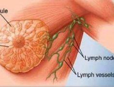 Esta é uma das causas do câncer de mama segundo cientistas. E você a consome quase todos os dias! - Dicas Aki!