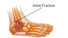 Suffered an ankle fracture during a work related injury or motor vehicle accident?  Call Rio Valley IMS at (956)566-8541 for the appropriate treatment.  Our providers specialize in all types of traumatic injuries.  Located at 801 E. Nolana Ave., Suite 17 McAllen, TX and 2602 W. Expressway 83, Suite B McAllen, TX.  No appointment needed.