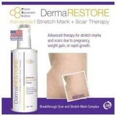 Visit our site http://laserstretchmarkremovalguide.net for more information on Laser Stretch Mark Removal.Laser stretch mark removal is a fast and easy way to get rid of stretch mark scars for good. Laser treatment offers a faster and pain-free way to remove stretch marks permanently. If you have large or deep marks or scars laser treatment may be the right method for you.