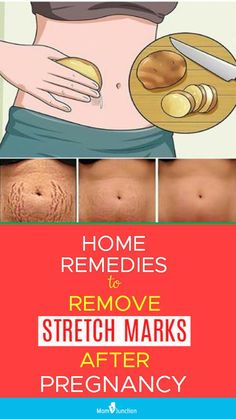 16 Working Home Remedies To Reduce Stretch Marks After Pregnancy How To Remove Stretch Marks After Pregnancy: 16 Home Remedies & Medical Treatments Stretch Mark Remedies, Stretch Mark Removal, Reduce Stretch Marks, How To Get Rid Of Stretch Marks, Circulation Sanguine, Pregnancy Information, Itchy Eyes, Baby Care Tips, Pregnancy Care