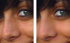 Mira los resultados de lavarte la cara por 5 días con Vinagre de Manzana