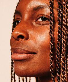 Precisamos falar sobre hiperpigmentação em pele negra » STEAL THE LOOK Look, Skincare, Chain, Estheticians, Dark Skin, Pimples, Exfoliating Scrub, Skincare Routine, Necklaces