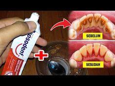 Dokter Gigi Kaget Karang Gigi Hilang Dalam 5 Detik Cara Menghilangkan Karang Gigi Secara Alami Youtube Pemutih Gigi Alami Kesehatan Gigi Obat Alami