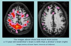 Brain Other Health After Alcohol Years Abuses Images Of Psicologia Best Drug 45 And Brain The