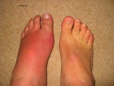 The difference is rather obvious... Gout is really painful, so get the treatment as soon as possible.