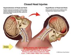 Any serious injury to the body can have significant ant lasting effects. However, traumatic brain injuries bring with them an even more profound set of challenges. This is true because they can hav… Intracranial Pressure, Med Surg Nursing, Misophonia, Trauma Nurse, Car Accident Injuries, Frontal Lobe, Head Injury, Nursing Care, Traumatic Brain Injury