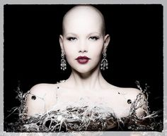 She?s Still Beautiful: Woman With Cancer Continues To Model, Even After Chemotherapy Leaves Her Bald (Photos)