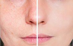 Remèdes naturels contre les cicatrices d'acné - Améliore ta Santé
