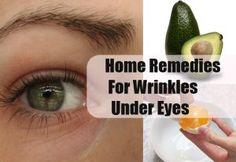 Remedies For Wrinkles Under Eyes