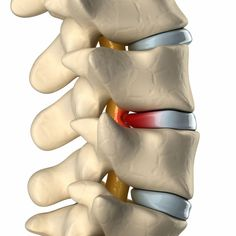 I know not everyone suffers from a herniated disc, but In this post there is a lot of useful information about why nutrition and exercise are so important for our health. Enjoy!