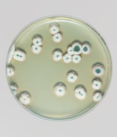 XXXXVII Magical Contamination, Antoine Bridier-Nahmias Growth And Decay, Plant Cell, Petri Dish, Organic Art, Microbiology, Fungi, Installation Art, Illustration, Artsy