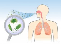 Read about a study reporting that many cystic fibrosis patients have long-term Staphylococcus aureus bacteria infections. Staph Infection, Bacterial Infection, Hvac Filters, Website Design And Hosting, Hvac Repair, Air Ventilation, Small Study, Cystic Fibrosis, Art Competitions
