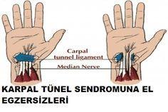 Karpal tünel sendromu bir yada iki elin ilk 3 parmağını tutan ilerleyici özellik gösteren bir hastalıktır .El bileğinin ortasında bulunan ve ilk 3 parmağa yayılan medyan sinirin bası altında kalması sonucu ağrı ,uyuşukluk ve güçsüzlükle kendini gösterir Genellikle 40-50 yaş arası hanımlarda daha sık görülür Eğer karpal tünel sendromu yaşıyorsanız parmak ve eklem esnekliğini korumak … … Okumaya devam et →
