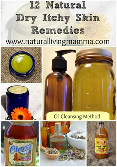 12 Natural Dry Itchy Skin Remedies. From simple to not so simple, all of these natural remedies are wonderful to help heal, moisturize and nourish dry itchy skin. Perfect for winter dryness, eczema, and more! - Natural Living Mamma