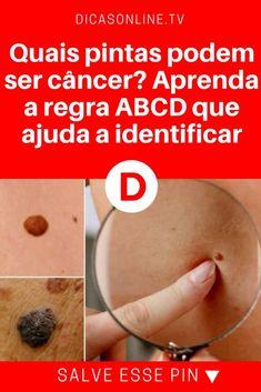 Identificar milanoma | Quais pintas podem ser câncer? Aprenda a regra ABCD que ajuda a identificar | Aprenda a fazer o autoexame de manchas para ficar alerta.