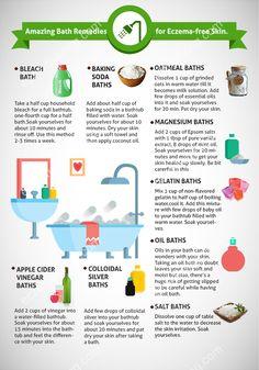 Amazing Bath Remedies for eczema free skin #Bleach_Baths #Baking_Soda_Baths #Oatmeal_Baths #eczema_remedies #bath #soultions #eczema_cure #eczema_care
