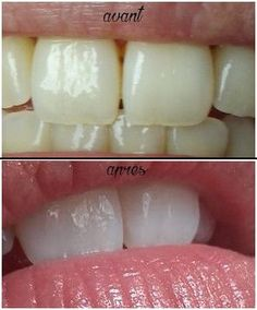 Blanchiment des dents Beauty Secrets, Diy Beauty, Beauty Hacks, Natural Life, Natural Health, Perfect Beard, Beard Care, Hair And Beard Styles, Beauty Essentials