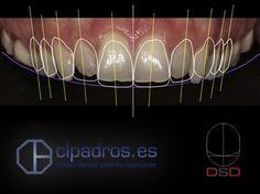 En nuestra clínica disponemos de las más avanzadas técnicas para complementar nuestros tratamientos: Con Digital Smile Design (Diseño digital de la sonrisa) podemos precisar más que técnicas deberemos usar en cada caso. ¡Así podemos conseguir siempre los mejores resultados! Descúbre más sobre DSD aquí: https://clpadros.es/especialidades/estetica-dental/#Diseno_digital_de_la_sonrisa_Digital_Smile_Design_DSD