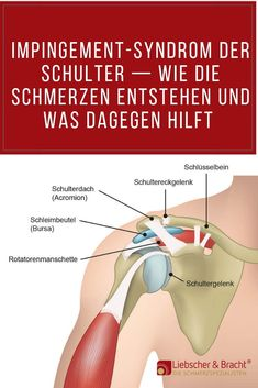 Cause and exercises for impingement syndrome in the shoulder - . - Cause and Exercises for Impingement Syndrome in the Shoulder – the # - Fitness Workouts, Yoga Fitness, Fitness Tips, Fitness Motivation, Health And Wellness, Health Tips, Health Fitness, Cat Health, Shoulder Impingement Syndrome