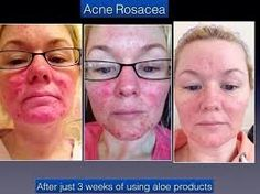 Acne Rosacea- Results after 3 weeks Products used: Forever Aloe Vera Gel, Hand Face Soap, Propolis Creme. www. Rosacea Symptoms, Rosacea Remedies, Acne Rosacea, Pimples, Forever Living Aloe Vera, Forever Aloe, Clean9, Face Soap, Forever Living Products