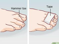 Imagen titulada Straighten Toes Step 11 Bed Workout, Gym Workouts, Hammer Toe Surgery, Reflexology Sandals, Foot Exercises, Stroke Recovery, Massage Tips, Quick Healthy Breakfast, Gym Workout For Beginners