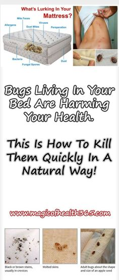 BUGS LIVING IN YOUR BED ARE HARMING YOUR HEALTH. THIS IS HOW TO KILL THEM QUICKLY IN A NATURAL WAY!