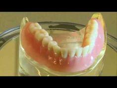 Műfogsor rögzítés extra vékony titán implantátummal - a stabil fogsor Önnek is jár