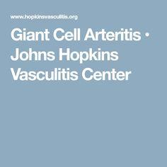 Giant Cell Arteritis • Johns Hopkins Vasculitis Center