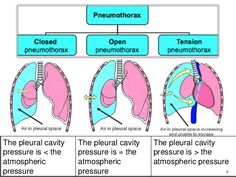 Image result for closed pneumothorax vs tension pneumothorax