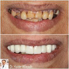 Gum Correction with Laser and Emax Veneer by Dr. Haider Alfayadh.  تجميل اللثه بالليزر مع هوليوود سمايل ايماكس فنيير.  #qatar #ksa #kuwait #uae #emirates #dubai #oman #lebanon #germany #jordan #usa #bahrain #bahrainclinic #bahraindental #dental #dentalclinic #specialists #dentist #smile #cosmetic #emax #veneer #implantologist #dentalclinicbahrain #visityourdentist #dentistinbahrain #drhaideralfayadh