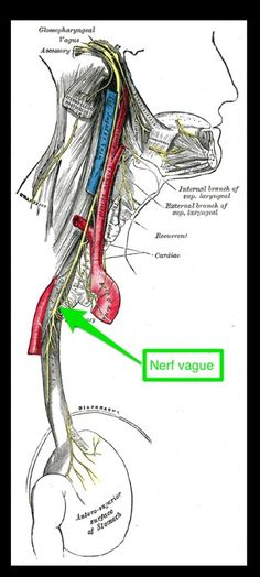 The vagus nerve connects brain, heart and stomach. An irritated vagus nerve caused by stomach bloating can result in heart palpitations and dizziness. Relieve by sorting out digestive issues - food sensitivity, excess gas, low enzymes. Nerf Facial, Nerf Vague, Neurocardiogenic Syncope, Reflux Disease, Parkinson's Disease, Disease Symptoms, Vagus Nerve, Physical Therapy, Health