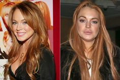 Lindsay Lohan's plastic surgery - before and after