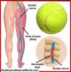 Acupuncture Pain Relief Learn how to do tennis ball therapy which helps to relieve sore muscles and muscle tension, and can relieve sciatica and back pain. - You only need a tennis ball to relieve your sciatic pain and back pain (VIDEO) Sciatica Stretches, Sciatica Pain Relief, Sciatic Pain, Treating Sciatica, Sciatica Massage, Sciatica Symptoms, Scoliosis Exercises, Psoas Release, Massage Therapy