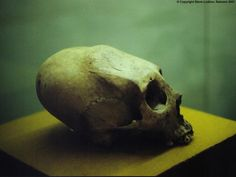 Mayan skull with cranial deformation created by a forehead flattening board.