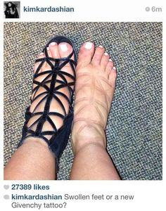 Kim Kardashian's Pregnancy Feet | The Best Celebrity Memes Of 2013 this is actually disgusting... :P