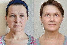 MAKE FACE — упражнения для мышц лица от компании VILAVI http://vilavimsk.ru/category/facebuilding-trenirovki-dlya-molodosti-lica