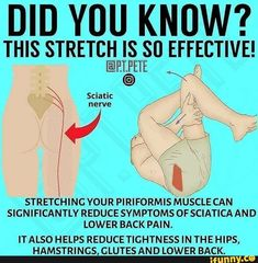 Sciatica Exercises, Back Pain Exercises, Daily Stretches, Hip Stretching Exercises, Hip Strengthening Exercises, Hip Flexor Exercises, Best Lower Back Stretches, Hip Flexor Pain, Bursitis Hip