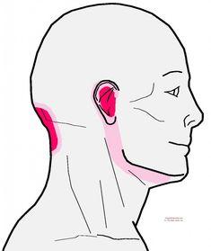 referral - rectus capitus anterior and lateralis