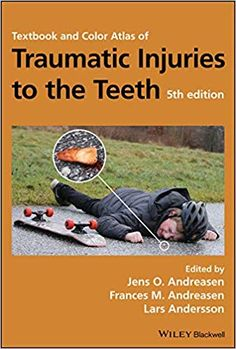 """Read """"Textbook and Color Atlas of Traumatic Injuries to the Teeth"""" by available from Rakuten Kobo. Textbook and Color Atlas of Traumatic Injuries to the Teeth, Fifth Edition encompasses the full scope of acute dental tr."""