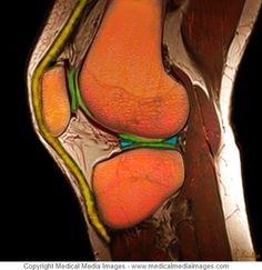 Color Knee Joint MRI showing the Knee Meniscus in Blue. Ideal for Medical Websites and Publications. Knee Joint Anatomy, Anatomy Of The Knee, Knee Mri, Knee Meniscus, Medical Lab Technician, Medical Websites, How To Stay Healthy, Athletic Training, Media Images
