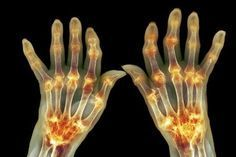 Lékaři nechápou: Tento jediný minerál vyléčil artritidu a křeče za 4 týdny u 97 % pacientů