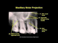 ORAL RADIOLOGY - Module 9 - Landmarks in Intraoral and Panoramic Images