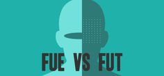 Click on the given link to read out new post on Which is the Best Technique for Hair Transplant- FUT or FUE?