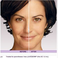 Juvederam facial filler- Before And After available at Charleston Oral and Facial Surgery