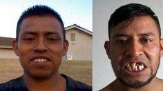 Un juego de futbol dejó a un migrante sin dientes en coma y debiendo $105.000