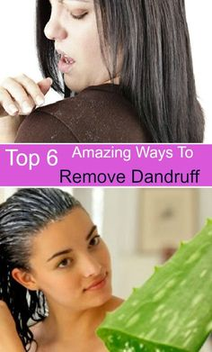 Dandruff is a condition of the scalp caused by yeast like fungus that grows on the scalp. It results in shedding of the skin of the scalp and could occur due to dryness of the scalp or due to synthesis of excessive oil on the scalp.