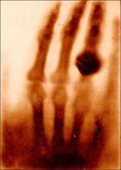 The first X-Ray image